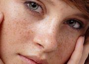 Bật mí 5 loại mặt nạ trí nám tàn nhang hiệu quả cho bà bầu
