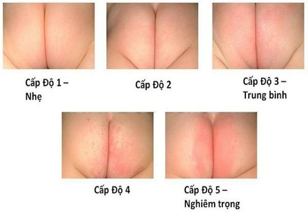Điểm danh các bệnh ngoài da ở trẻ sơ sinh thường gặp