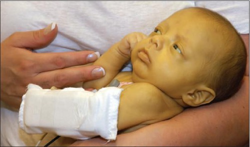 Dấu hiệu trên phân của trẻ cảnh báo bé cần đi khám gấp