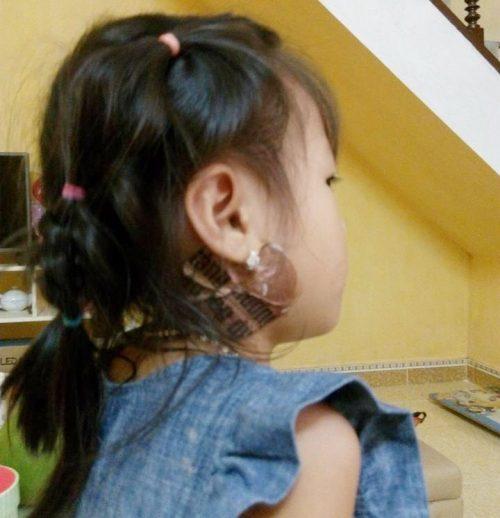 Bài thuốc dân gian chữa quai bị cho trẻ em nhanh và hiệu quả
