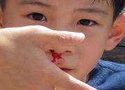 Cách xử lý hiện tượng chảy máu cam ở trẻ em