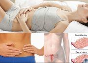 U nang buồng trứng dấu hiệu và cách điều trị