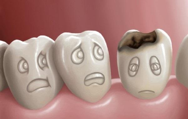 Tư vấn cách chữa đau răng tại nhà cho bé để các mẹ tham khảo