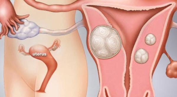 Mọc 36 khối u xơ tử cung chỉ vì thói quen ăn quá nhiều thịt